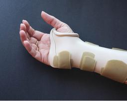 Custom Hand Splints