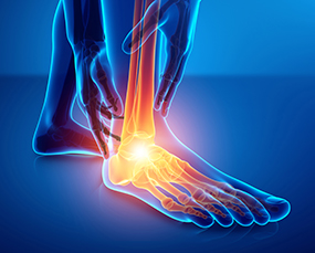 Foot & Ankle Sprains