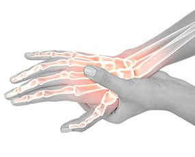 Wrist Pain & Carpal Tunnel Syndrome